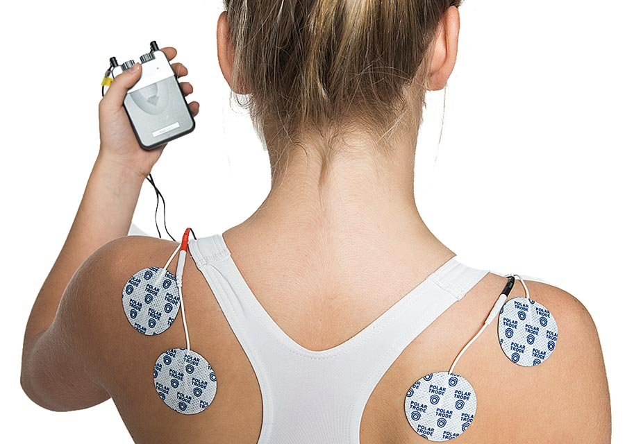Woman with polar neurostimulation electrodes on het body
